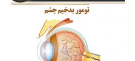 تومور بدخیم چشم