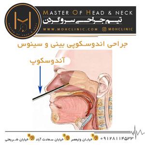 جراحی اندوسکوپی بینی و سینوس