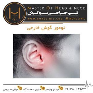 تومور گوش خارجی