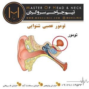تومور عصبی شنوایی