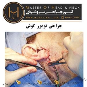 جراحی-تومور-گوش