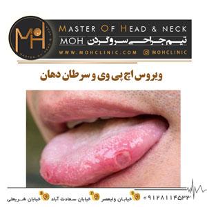 ویروس اچ پی وی و سرطان دهان