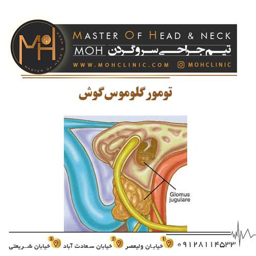 تومور گلوموس گوش