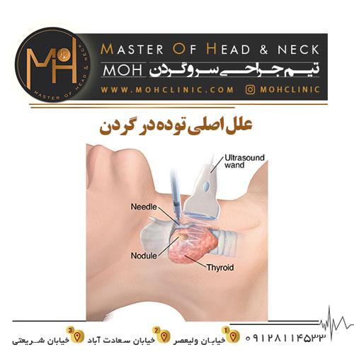 علل اصلی توده در گردن